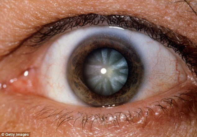 One thing that almost all scientists agree on is that microwave radiation causes cataracts